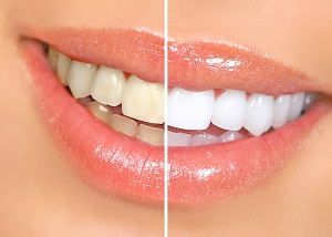 california smile teeth whitening